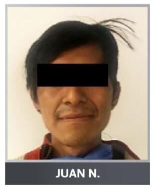 """Reaprehenden a """"El Clicha"""" hombre dedicado al narcomenudeo"""